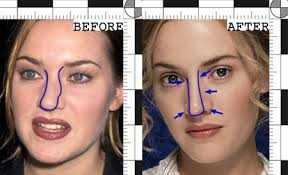 دانلود pdf کتاب حقایقی درباره عمل زیبایی بینی رایگان